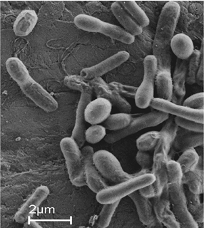 Bacteria used in bacterial concrete